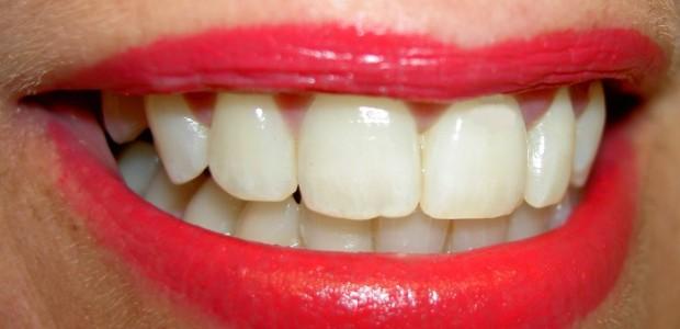 Seit 1991 gibt es in Deutschland den Tag der Zahngesundheit am 25. September. Dieser Tag soll vor allem der Sensibilisierung für Vorsorge, Verhütung von Zahn-, Mund- und Kiefererkrankungen, der Aufklärung […]