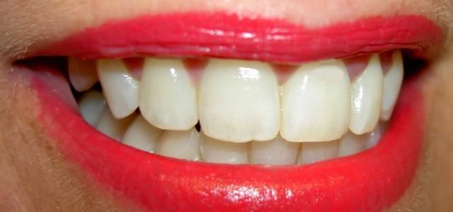 Unter dem Begriff Zahnimplantat versteht man ein Implantat das in den Kieferknochen eingesetzt wird. Ein solches Implantat übernimmt also im Bedarfsfall all jene Funktionen, die vorher die Zahnwurzel ausgeführt hat. […]