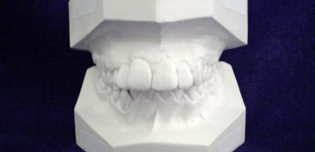 Das Thema Zahnersatz ist immer wieder in aller Munde. Selbst bei vollständigem Bonusheft, welches der Zahnarzt bei der jährlichen Routineuntersuchung abstempelt, übernimmt die Krankenkasse nur bis zu 30 zusätzlichen Prozentpunkten. […]